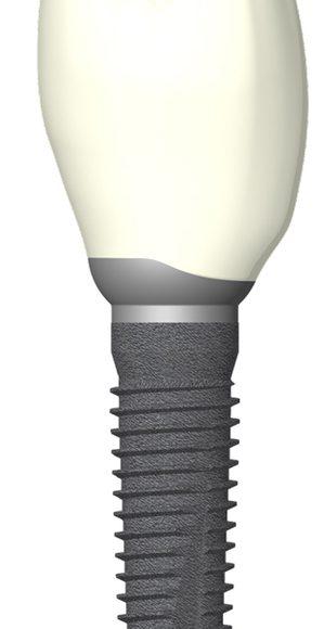 Zahnimplantate für ein schönes Gebiss