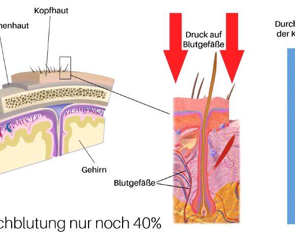 BX Therapie gegen Spannungshaarausfall
