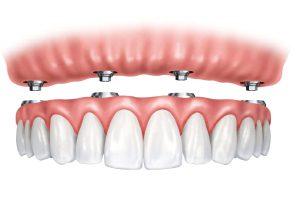 Vier Implantate im Oberkiefer