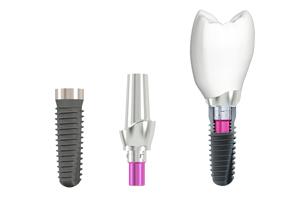 Implantate – mehr Zahn als Ersatz